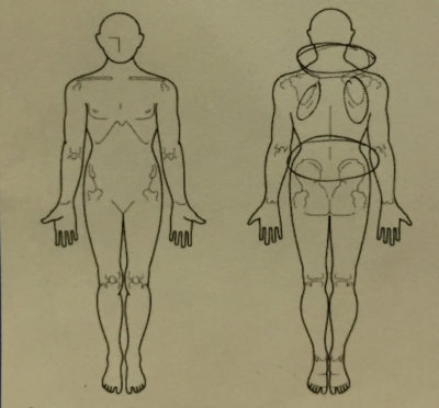 腰の痛みやのぼせ、首肩の疲れ【マンガ家】20代女性の改善した1症例