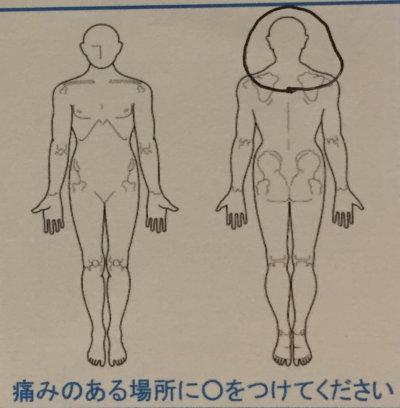 頭痛と肩こり陰虚による寝汗【MRI問題なしだった】30代女性の1症例