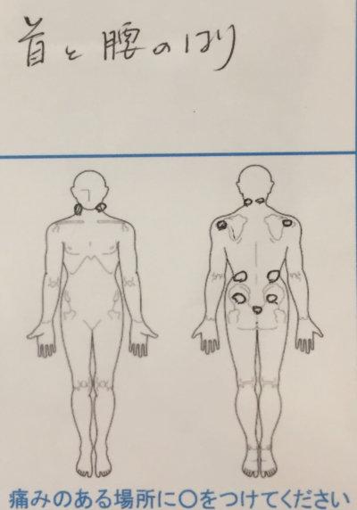 頭痛腰痛腕の痛み【更年期障害あり】50代女性の1症例