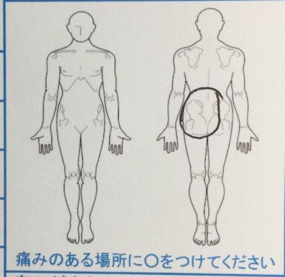 サッカー後の腰痛【1週間前から】40代男性の1症例