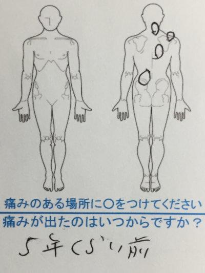 5年前から左腰ヘルニア→右首右背中の痛み40代男性の1症例