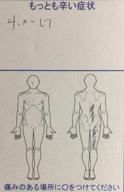 サッカーで腰を痛めた【右足しびれもあり】痛みが改善した1症例
