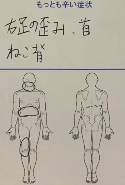 右足の歪み、首こり、ねこ背【ストレッチで違和感】30代女性の1症例