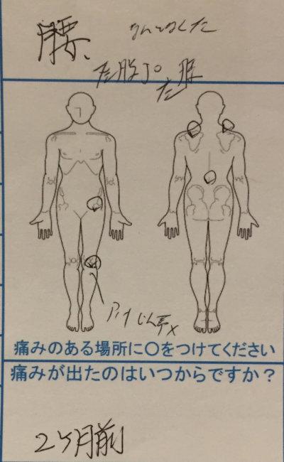 腰と左膝が痛い【50代主婦】の整体治療の1症例