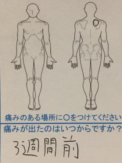 3週間前から右肩が痛い【SE20代男性】の鍼灸治療1症例
