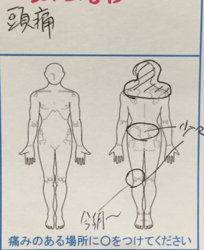 肩こりがひどくて首が固まり頭痛【しびれた感じ】腰痛や股関節の異常もあった40代女性の1症例