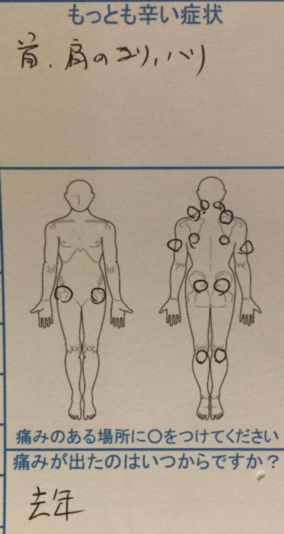 全身ばきばきの肩こり腰痛【マッサージ効かない】40代男性の1症例