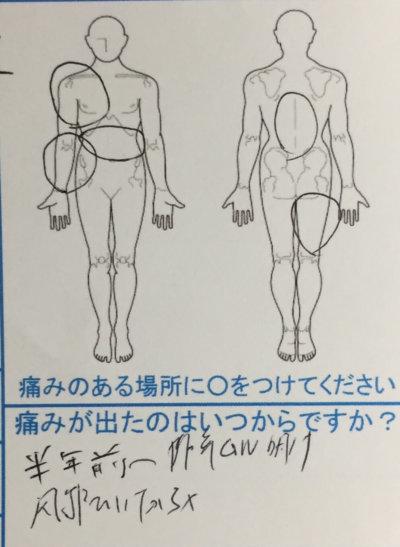 右半身の鈍痛しびれ【様々な病院で改善されず】6ヶ月悩んだ辛さが3回の治療で改善した1症例