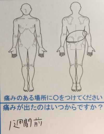 飲食業で腰痛【1週間前から】一度で改善した20代女性の1症例