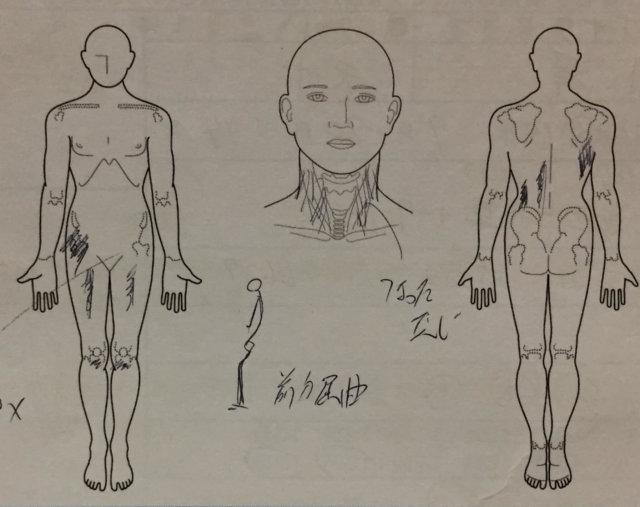 10代膝の痛み【成長痛?】膝から腰、腕まで痛かった1症例