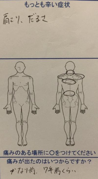 慢性的な肩こりと猫背【20歳女性】ダルさをともなう肩こり腰痛の1症例