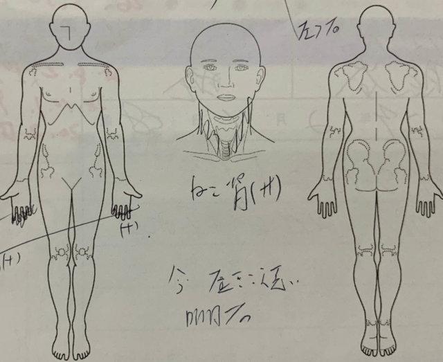 手先のしびれと肩の痛み【50代男性】整体鍼灸で解消した1症例