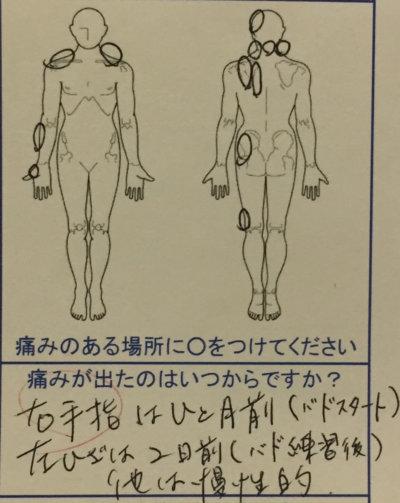 右手の痛み【背肩腰の張りから頭痛が慢性的】バドミントンで痛めた40代女性の1症例