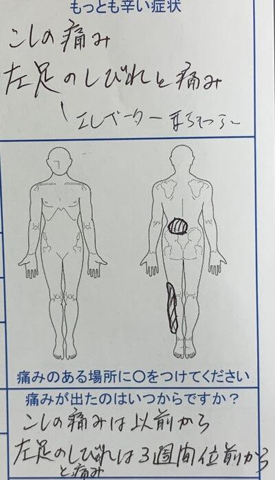 左足のしびれと痛み【腰の痛みあり】エレベーターを待てない程のしびれを訴えた50代男性の1症例