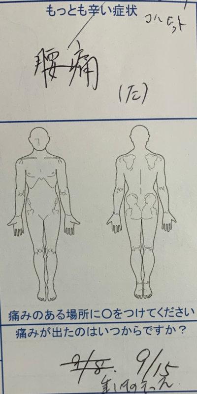 重いものを持って腰を痛めた【男のギックリ腰】1回でかなり改善した1症例