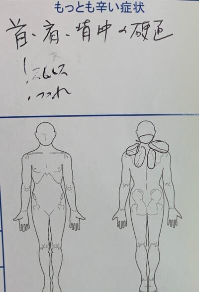 ストレスによる首肩背中の硬直【加味逍遥散服用中】40代女性の1症例