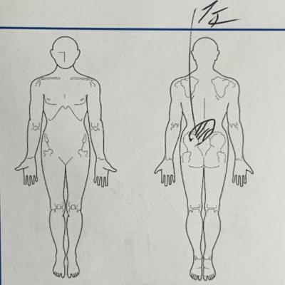 ギックリ腰になった50代男性【整体鍼灸治療】で改善した1症例