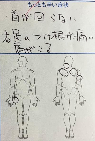 右半身の痛み【首・肩・腕】やしびれを整体鍼灸で改善した1症例