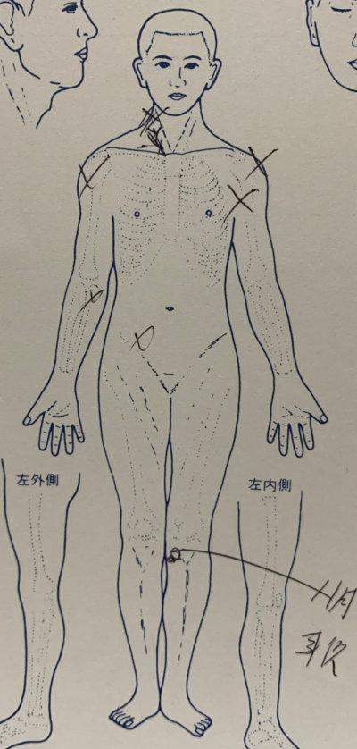 慢性的な腰痛や頭痛が1度で軽減【30代男性】の1症例
