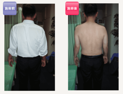 整体鍼灸治療Before after4